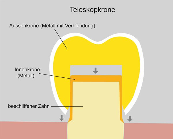 Illustration einer Teleskopkrone